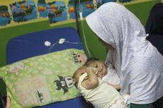 Sakit, Bayi Kembar Siam Fadli-Fadlan Dirujuk ke RSHS Bandung