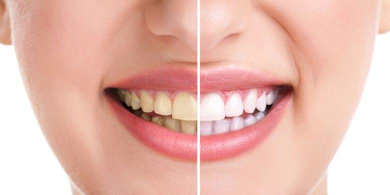 Ingin Gigimu Putih dan Bersih  Lakukan 4 Langkah Ini... - Kompas.com 6fcdaec9b3