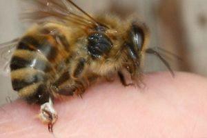 Wanita Ini Meninggal Akibat Akupunktur Lebah, Ini Pelajaran untuk Kita