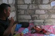 Nasib Tragis Anisa, Bayi dengan Berbagai Kelainan Bawaan