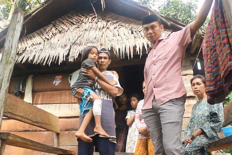 Wa Selmi (7), warga Desa Watopute, Kabupaten Muna, Sulawesi Tenggara, nyaris tewas setelah digigit dan dililit ular piton yang panjangnya sekitar 7 meter, saat hendak ke kebunnya, Rabu (1//5/2019) sore.