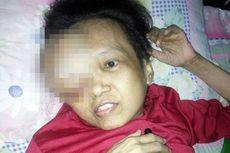 Doa Suami untuk Istri yang 2 Tahun Derita Kanker Payudara dan Pembengkakan Mata