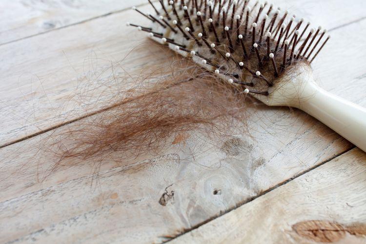 Ilustrasi rambut rontok