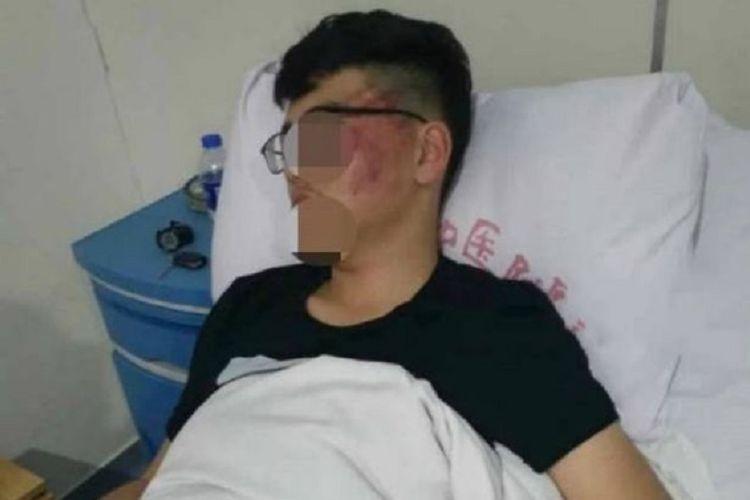 Beginilah kondisi seorang murid SMA di China yang ditampar gurunya karena ketahuan ngobrol di dalam kelas.