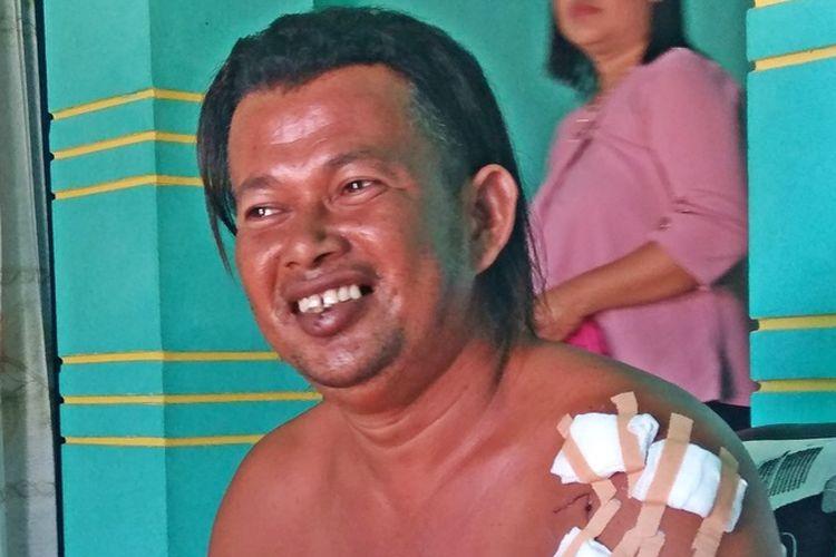 Tunding, warga Kampung Mamolo, Kabupaten <a href='http://medan.tribunnews.com/tag/nunukan' title='Nunukan'>Nunukan</a>, Kalimantan Utara, yang sempat diserang buaya pada pertengahan bulan Juni lalu saat ditemui Kompas.com, Jumat (20/7/2018).