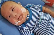 Adam Fabumi dan Trisomy-trisomy yang Mungkin Terjadi pada Manusia