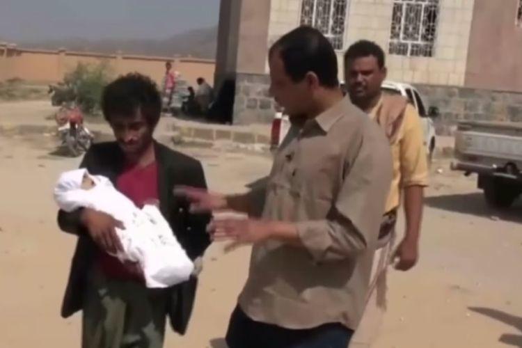 Abdo Shooi menggendong bayinya, Aqeel, yang kelaparan ke rumah sakit dengan berjalan kaki lebih dari tiga jam.