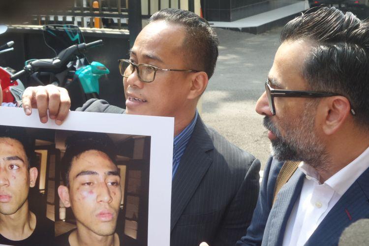 Artis peran Jeremy Thomas mengadukan oknum polisi yang diduga menganiaya anaknya ke Divisi Propam Mabes Polri, Jakarta, Senin (17/7/2017).