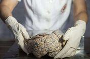 Ini Alasan Otak Kita Lebih Besar dari Makhluk Lain, Menurut Sains