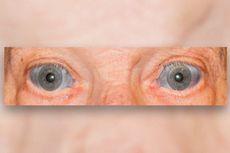 Kasus Langka, Bagian Putih Mata Pria Ini Berubah Jadi Biru