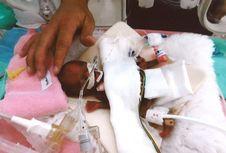 Lahir dengan Berat 258 Gram, Bayi Terkecil di Jepang Akhirnya Diizinkan Pulang