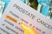 Para Ahli Kembangkan Perawatan Radioterapi Baru untuk Kanker Prostat