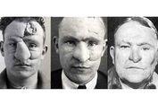 Pionir Operasi Plastik: Bagaimana Perang Dunia I Picu Prosedur Ini?