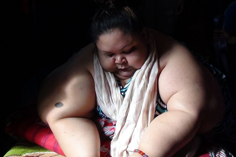 Wajah Titi terlihat sedih walau dirinya siap menjalani proses operasi saluran pencernaan