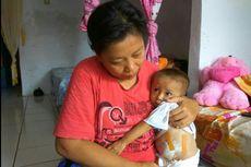 Kisah Iqbal, Bayi yang Terlahir Tanpa Lubang Anus dan Kaki Kiri