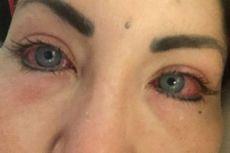 Ingin Ubah Warna Mata, Model Argentina Kehilangan Penglihatan