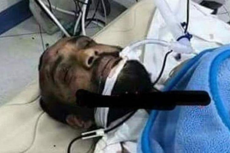 Foto pria yang diduga pelaku penyerangan ke gereja Kristen Koptik di Kairo tengah menjalani operasi.
