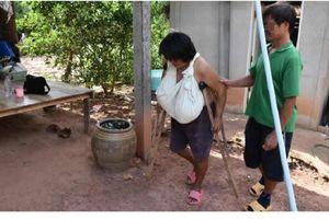 Terkena Kondisi Aneh, Payudara Wanita Ini Tumbuh Tak Terkendali