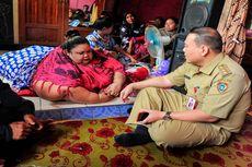 Jelang Operasi Pengecilan Lambung, Penderita Obesitas Titi Wati Ditangani 16 Dokter