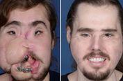 Kehidupan Kedua bagi Cameron Underwood Usai Transplantasi Wajah