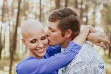 Penderita Alopecia Ini Berani Foto Pre-wedding Tanpa Wig
