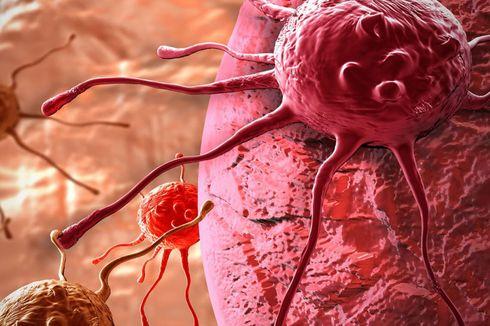 Basmi Kanker, Peneliti LIPI Kembangkan Terapi dengan Kurkumin dan Emas