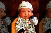 Idap Penyakit Kulit Langka, Bayi Ini Harus Mandi Cairan Pemutih