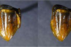 Temuan Gigi Kuno Berpotensi Mengubah Sejarah Evolusi Manusia, Kenapa?