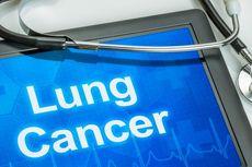 Mengenal 6 Jenis Pengobatan Kanker Paru yang Bisa Memperpanjang Hidup