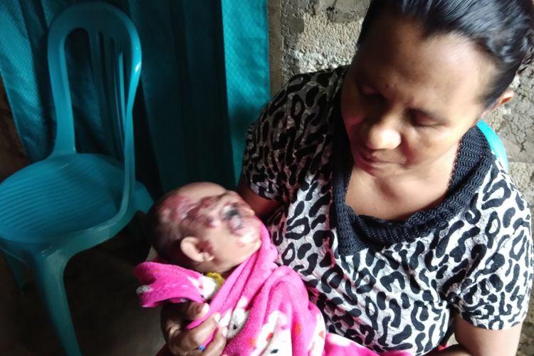 Debora Banu, saat menggendong putrinya Serafina Huan yang menderita kanker kulit di bagian wajah