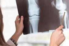 Waspada Osteoporosis, Perempuan Lebih Berisiko
