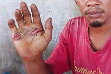Buktikan Tak Bersetubuh dengan Seorang Perempuan, Sopir di Sikka Dipaksa Pegang Besi Panas, Ini Ceritanya