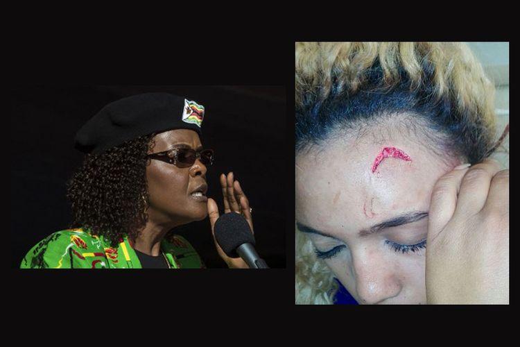 Ibu Negara Zimbabwe Grace Mugabe (kiri) dan perempuan model Gabriella Engels dengan luka terbuka di dahinya.