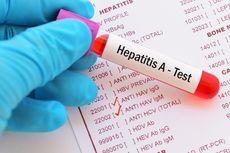 Mewabah di Depok, Berikut Penyebab Menyebarnya Hepatitis A