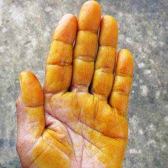 Bekas kunyit di jari tangan.