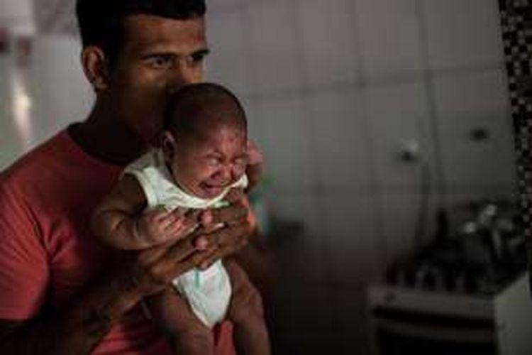 Matheus Lima memegang anaknya, Pietro, berumur 2 bulan, yang menderita mikrosefali diduga dampak virus Zika akibat gigitan nyamuk Aedes Aegypti, di Salvador, Brasil, 28 Januari 2016.