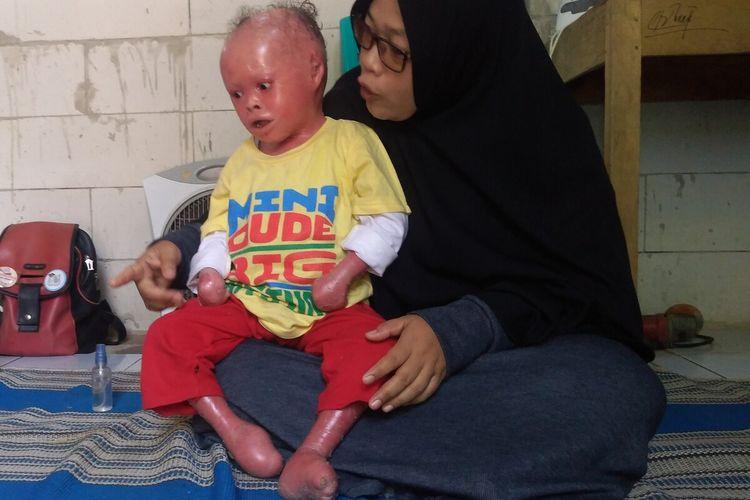 Muhammad Ridho Fauzi, bocah penderita sindrom harlequin ichthyosis bersama ibunya Siti Nur Endah di rumahnya di Desa Kaliori, Kecamatan Kalibagor, Kabupaten Banyumas, Jawa Tengah, Selasa (14/1/2029).