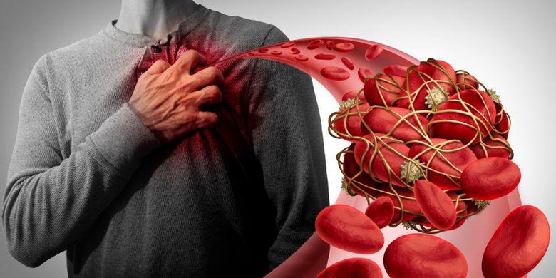 Ilustrasi penggumpalan darah atau trombosis arteri di jantung. Kondisi ini bisa menyebabkan serangan jantung.