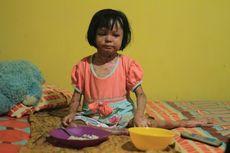 Ahli Medis: Butuh Petunjuk Teknis untuk Anak Pengidap Penyakit Langka