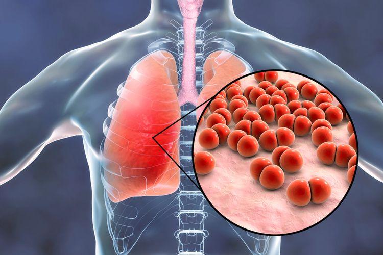 Ilustrasi pneumonia menjadi penyebab utama kematian pada bayi dan balita di Indonesia. Kematian balita akibat pneumonia di Indonesia peringkat ke-7 di dunia.