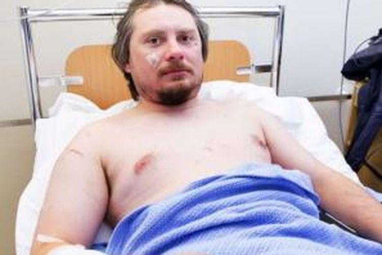 Jakub Moravec, turis asal Ceko, harus rela kehilangan kesempatan menonton gerhana matahari setelah dia terluka akibat diserang seekor beruang kutub di tendanya di Pulau Svalbard, Norwegia.