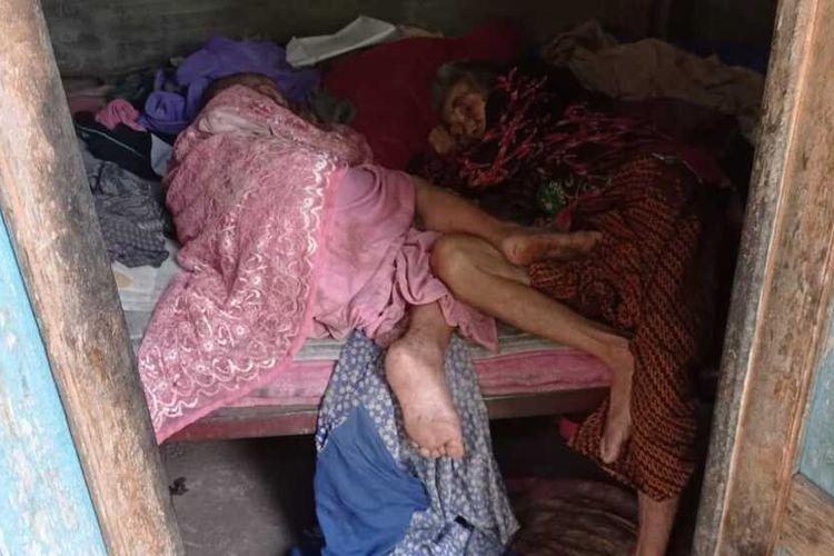 Tinggal di kamar tak layak berukuran 2X3 meter, kakak beradik yang telah berusia lanjut usia ini tak mau dipisahkan. Keduanya saat ini dalam kondisi sakit dan belum menerima bantuan dari pemerintah.