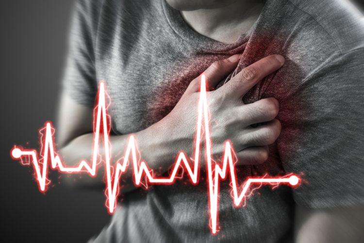 Ilustrasi serangan jantung, jantung berdebar