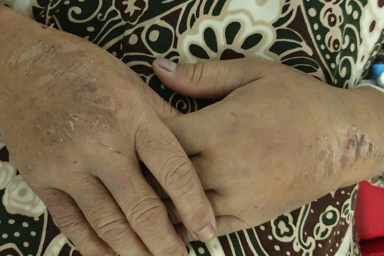 SBMI mengatakan Sulasih antara lain memiliki luka bekas setrika di kedua tangan.