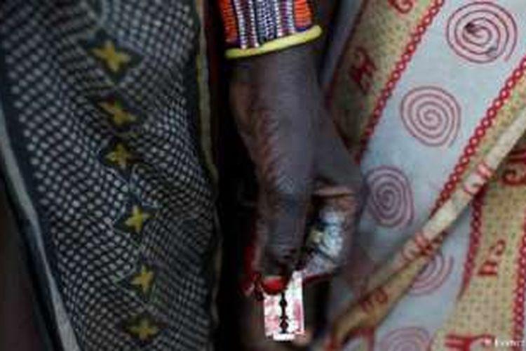 Praktik mutilasi genital pada perempuan (FGM) di Afrika sering membawa kematian.