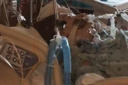 Berbulan-bulan Tidak Ganti Masker, Dokter Muda Meninggal karena Pendarahan Otak