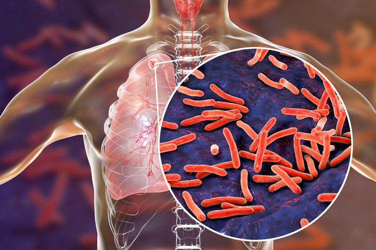 Ilustrasi paru-paru pasien pengidap tuberkulosis (TB) paru, dengan tampilan diperbesar bakteri Mycobacterium tuberculosis yang menyebabkannya.