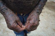 Bocah India Disebut Manusia Ular, Ini Kelainan Genetik yang Dialaminya