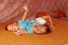 Mari Bantu Anaya dan Inaya, Bayi Kembar Siam dengan 1 Hati, Butuh Biaya Operasi Rp 1 Miliar