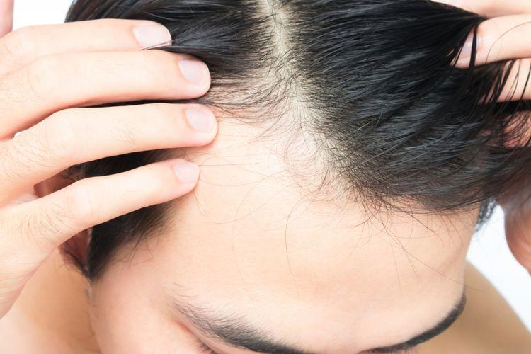 Garis Rambut Di Sepanjang Dahi Mundur Ini Tanda Mulai Botak Halaman All Kompas Com